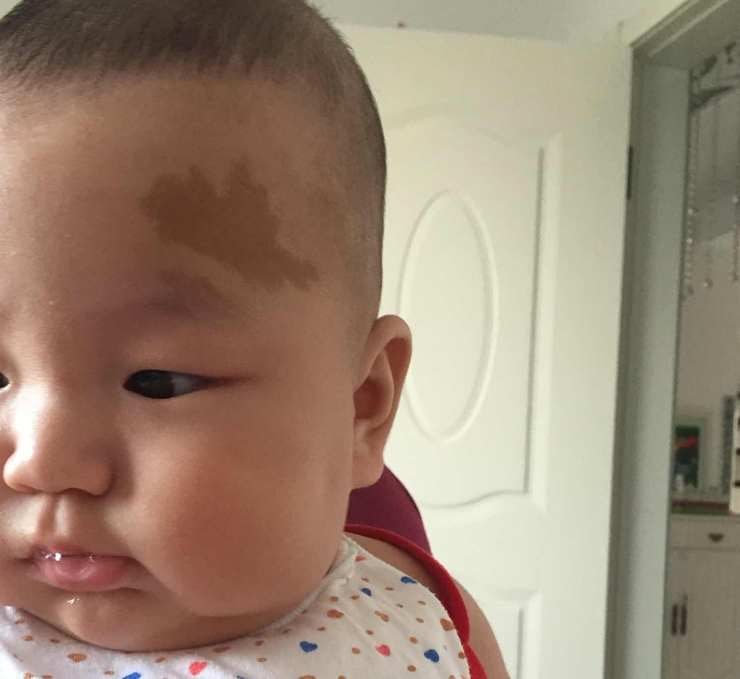 牛奶咖啡斑怎么去除,孩子4个月,这种牛奶咖啡斑怎么治疗?
