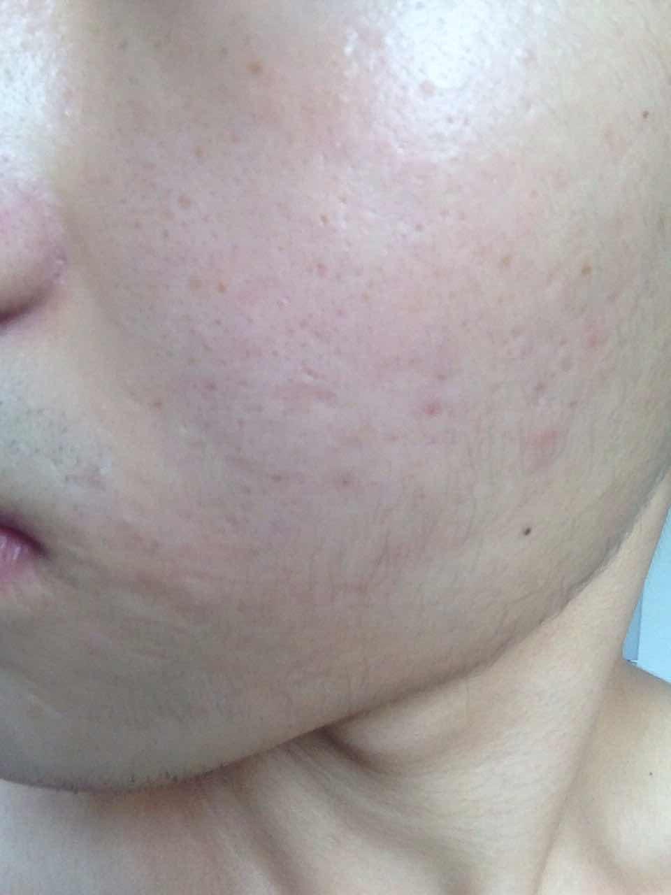 皮肤毛孔红点怎么治疗,能治吗?需要做激光还是什么的