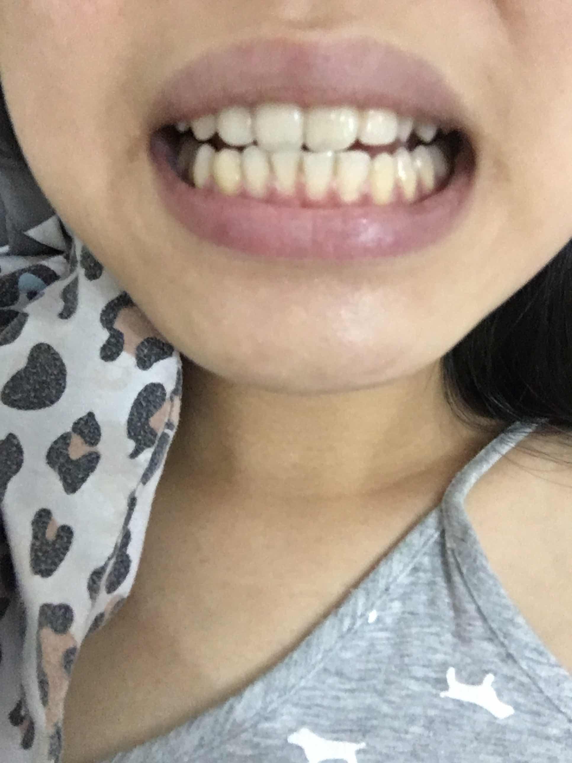 牙齿导致脸型不对称怎么办,请问下是否需要矫正?我的脸型有点不对称,不知道会不会是牙齿导致的?