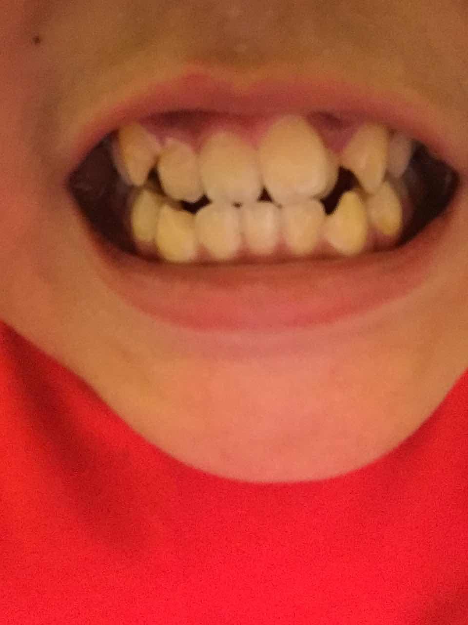 牙齿排列不齐怎么办,好吓人,应该怎么做比较好呢