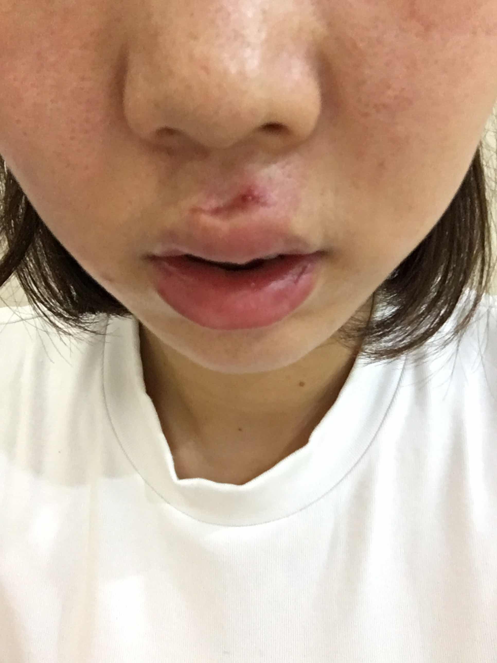 嘴唇有伤疤怎么去掉,人中部位贯穿伤 里面缝针 外面医用胶水处理 受伤22天