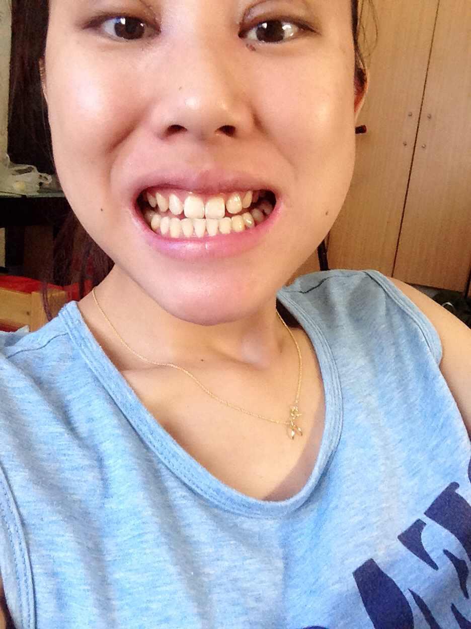 什么是无托槽隐形矫正,我今年26,牙齿有缝隙适合戴无拖槽隐形牙套不。