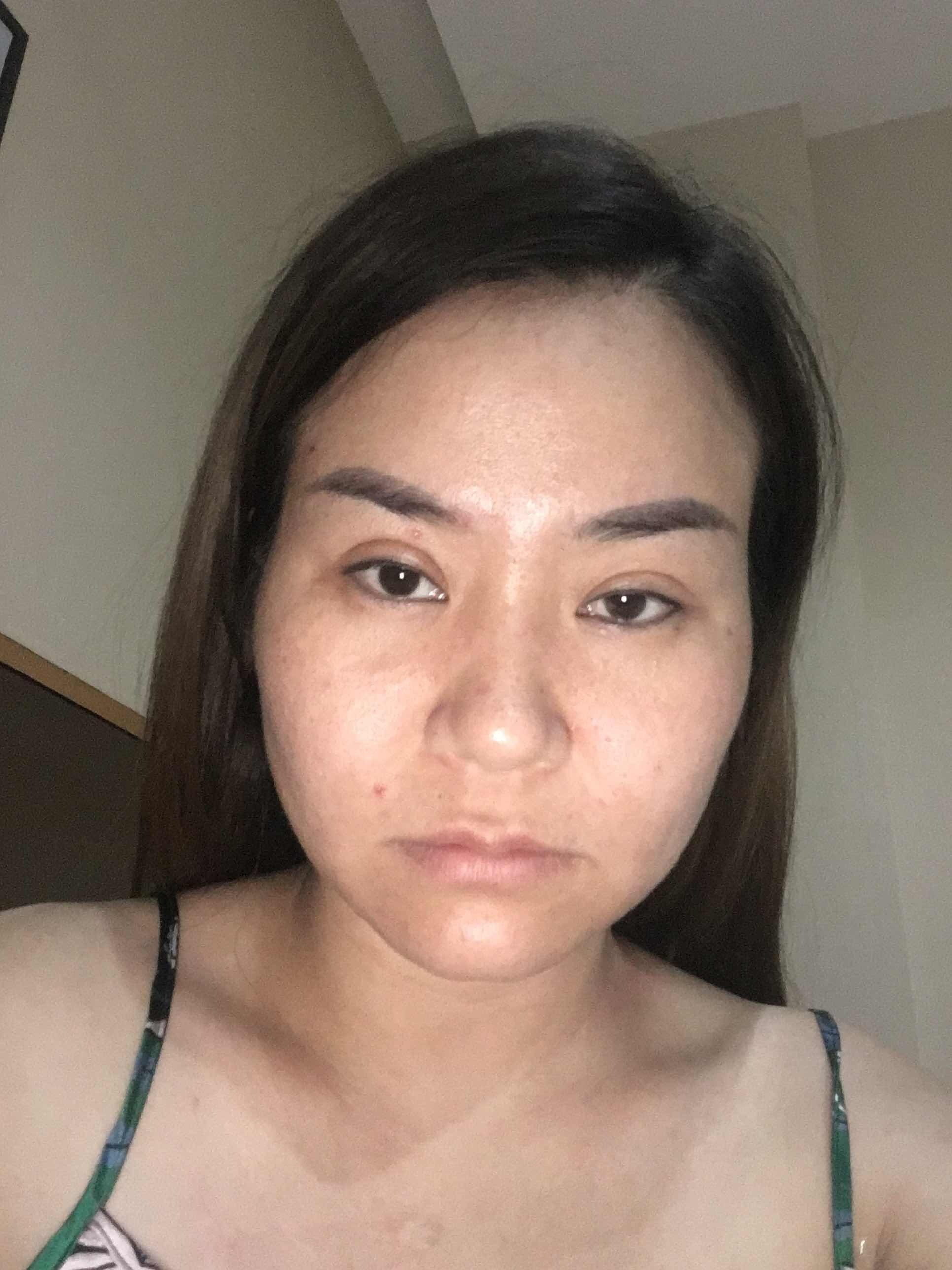 v脸手术是怎样的,想整容,太阳穴,鼻子,下巴,嘴巴,求大神给PS