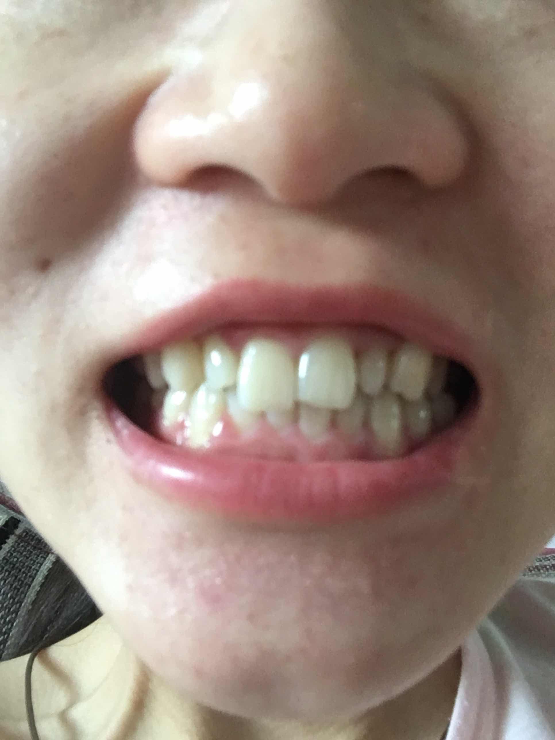 牙不整齐怎么办,请问这样的牙齿可以矫正吗,还能让牙齿在一条线上吗