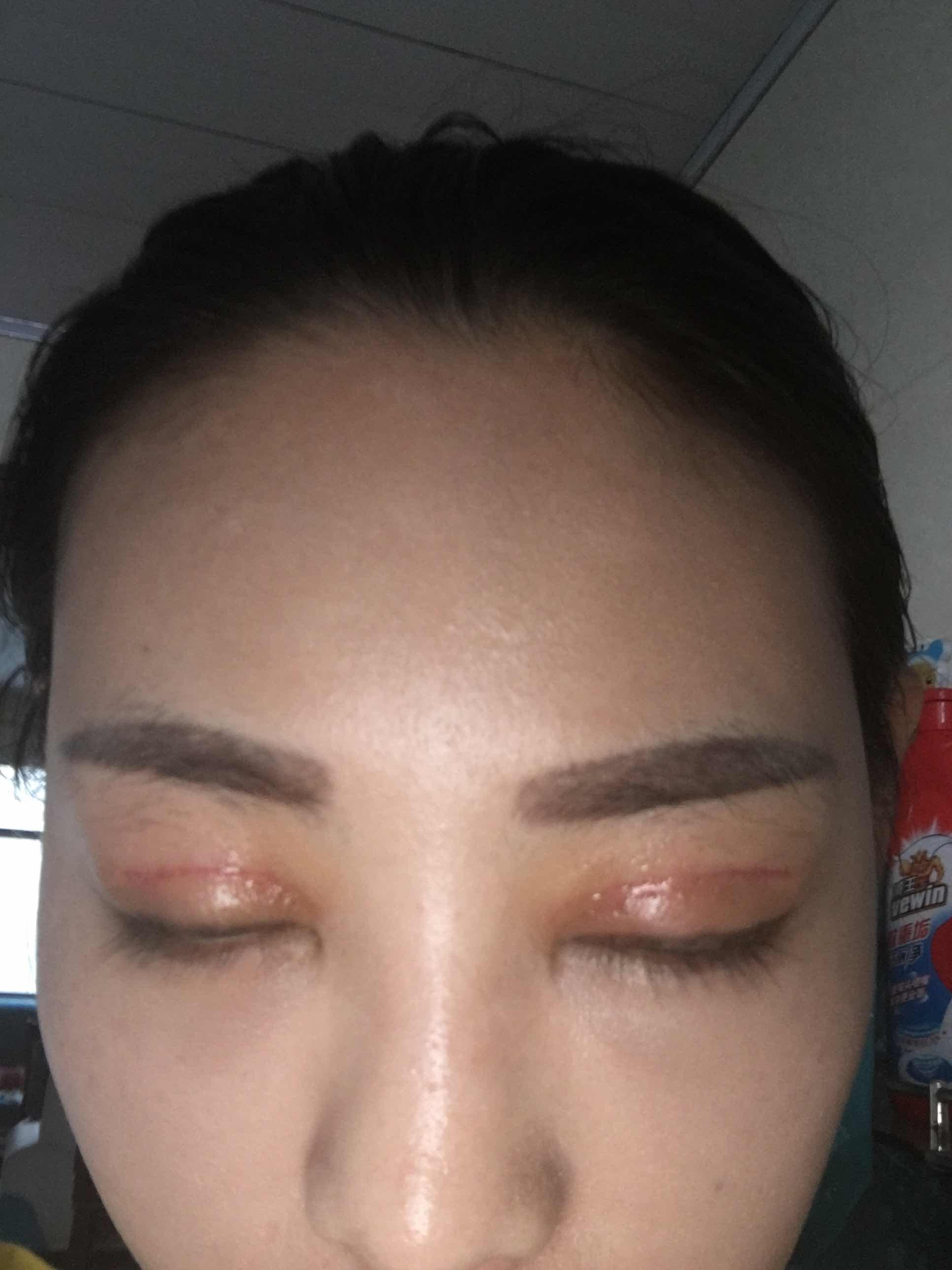 双眼皮手术后眼皮发红,双眼皮做的第十五天了,到现在线条还很红