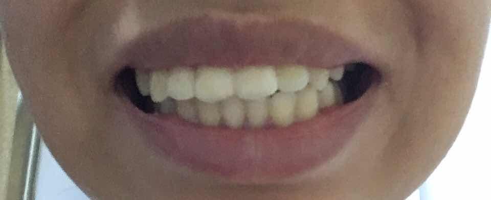 牙齿可以第二次矫正吗,矫正后成了这样。。。二次矫正费用多少。。。没有拔牙过