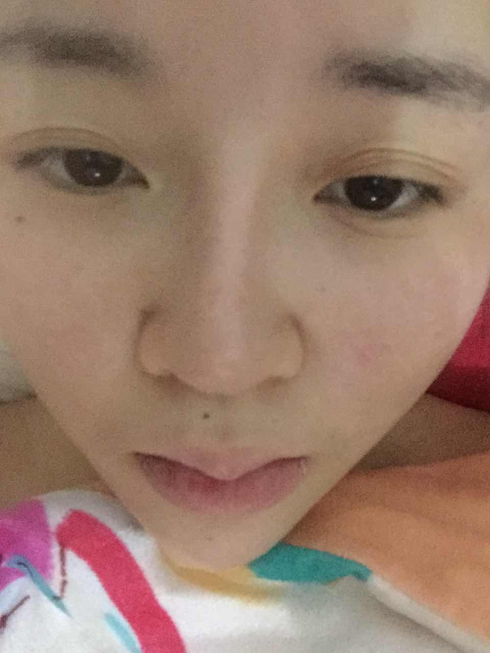 三层眼皮是怎么回事,可以重新做双眼皮矫正吗?