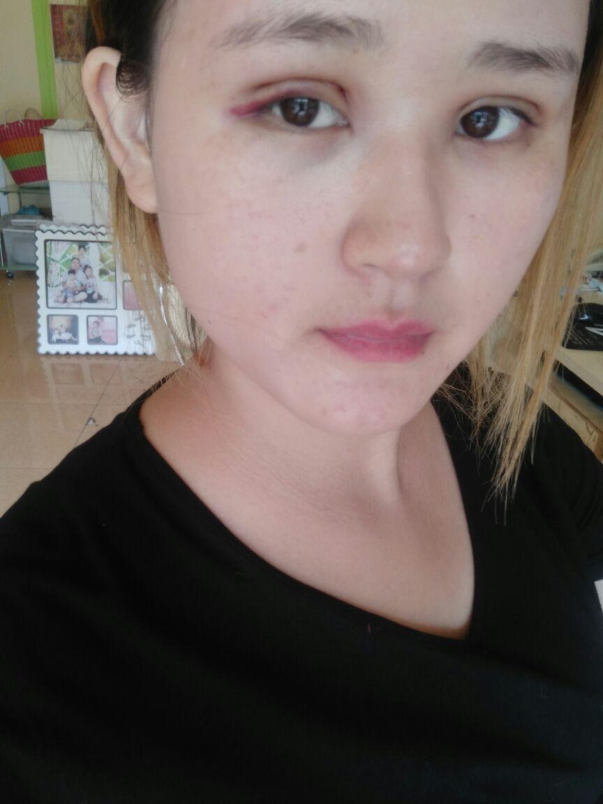 做完双眼皮怎么散瘀血,刚做完双眼皮第二天,一个眼睛看上去有淤血,有什么办法祛除淤血,消肿