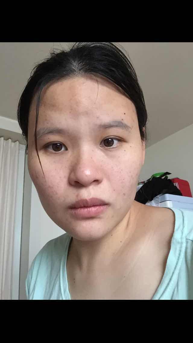 韩国面部轮廓手术多少钱,想做面部轮廓跟眼睛,韩国哪几家医院做这个做的好,考虑有原辰,新帝瑞娜,ID等等,哪家做的好,哪家收费合适又做的好的