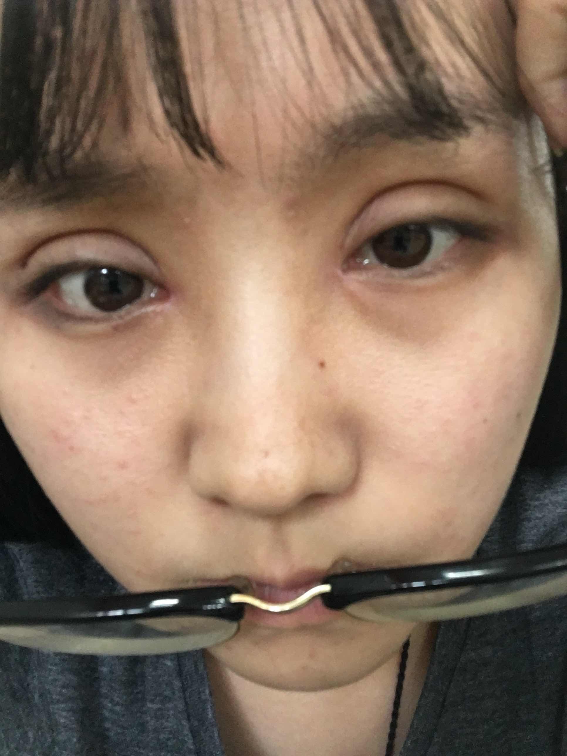 做的双眼皮要肿几天,全切双眼皮已经第11天了还肿,什么原因?什么时候才能消肿?