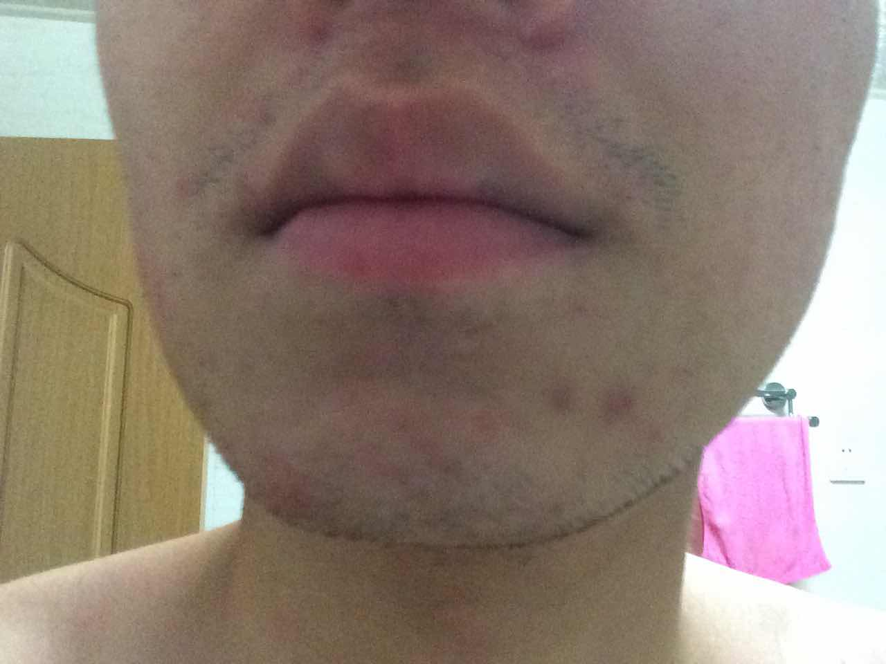 毛孔粗大可以根治吗,想先解决毛孔粗大,油脂分泌过旺,痘痘的问题。请问目前比较好的治疗仪器是什么?麻烦说清楚哦,不要光说激光,激光也有很多种。