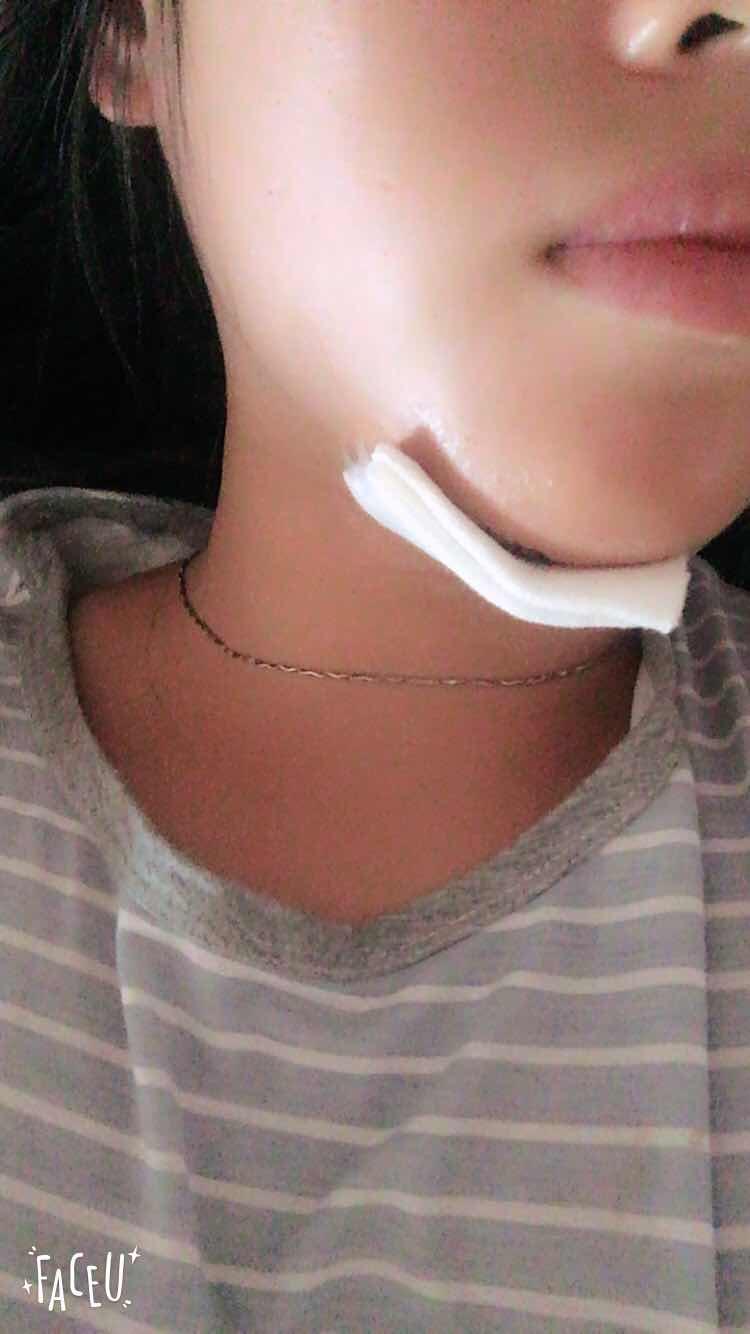 隆下巴有几种方法,下巴缝了几针,不知道会不会影响