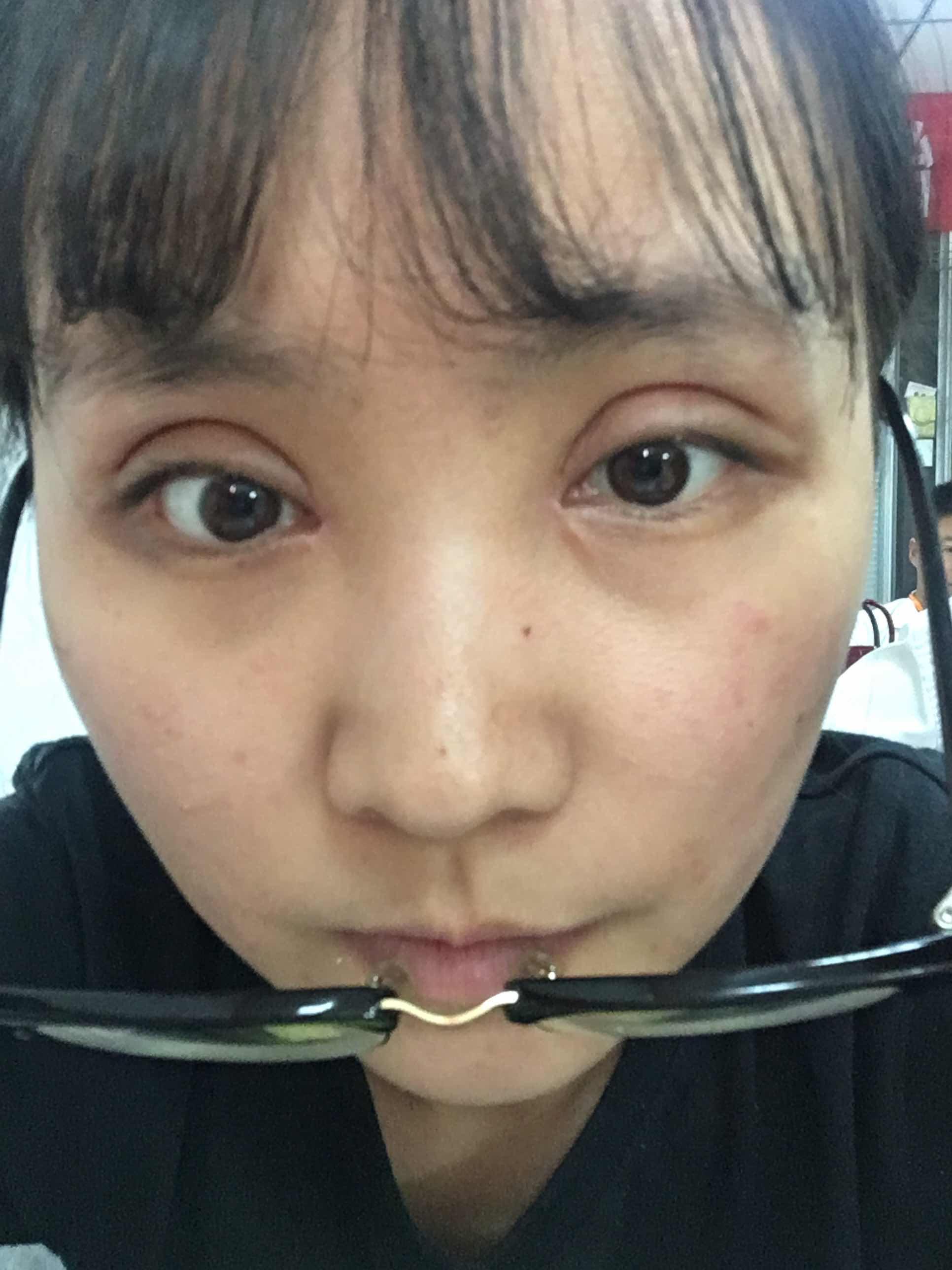 开眼角多久才能恢复,全切双眼皮加开眼角已经半个月了,为什么还肿,什么时候才能消肿呢,是否正常呢?