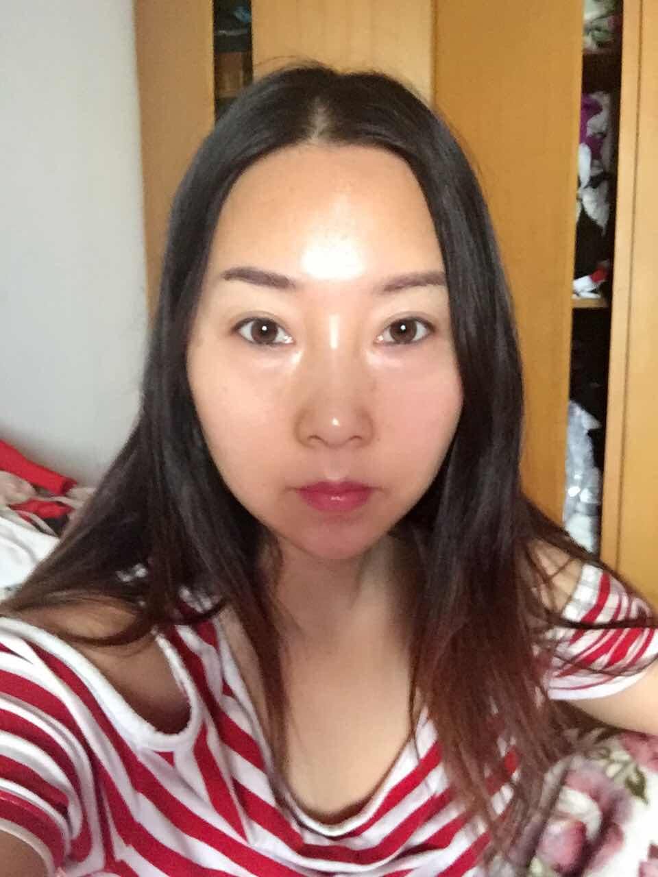 激光去眼袋效果好吗?