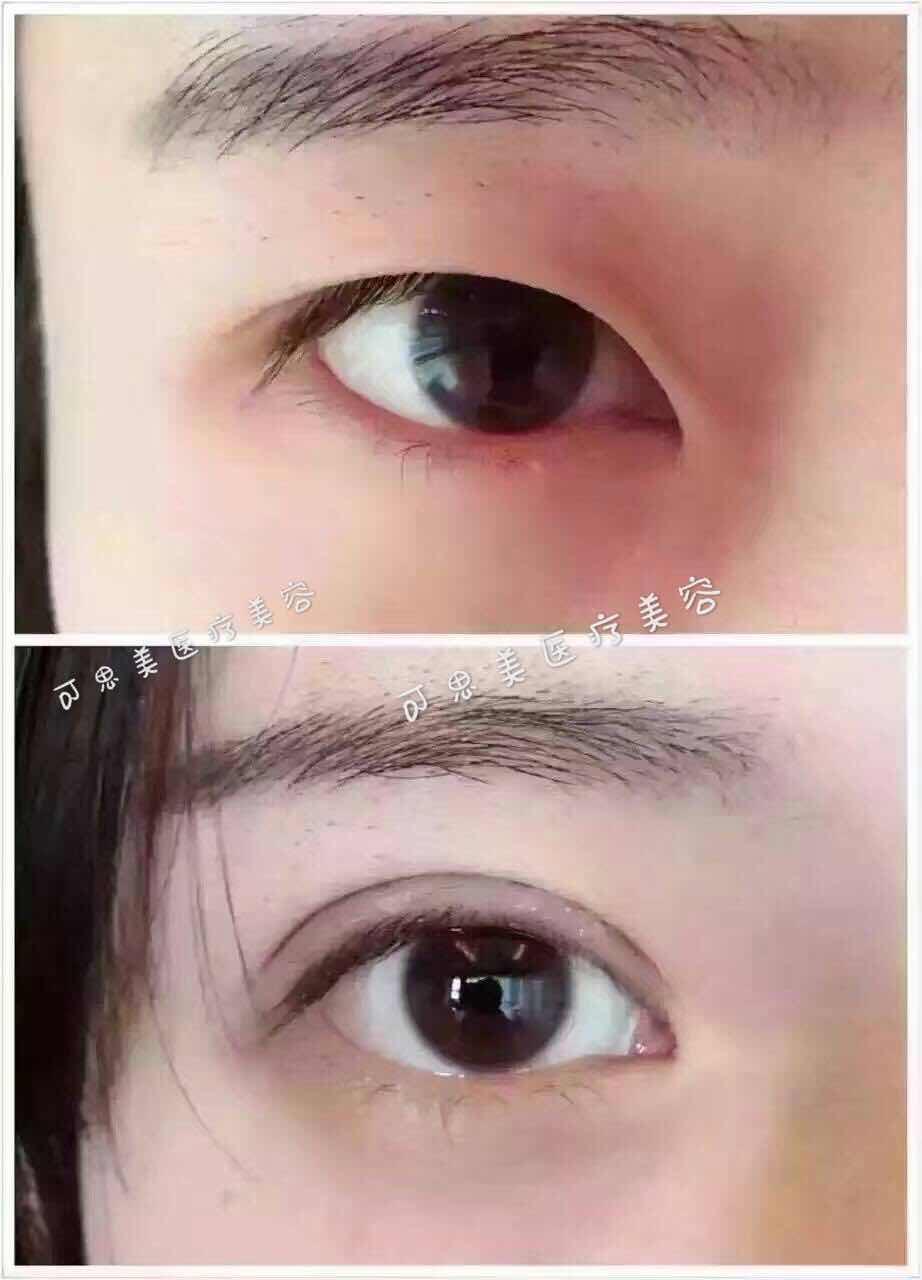 切开双眼皮会留疤吗?