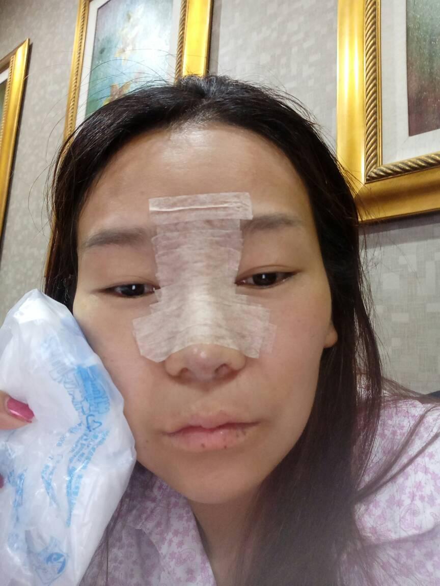 假体隆鼻好看吗?我做了假体隆鼻和隆鼻尖