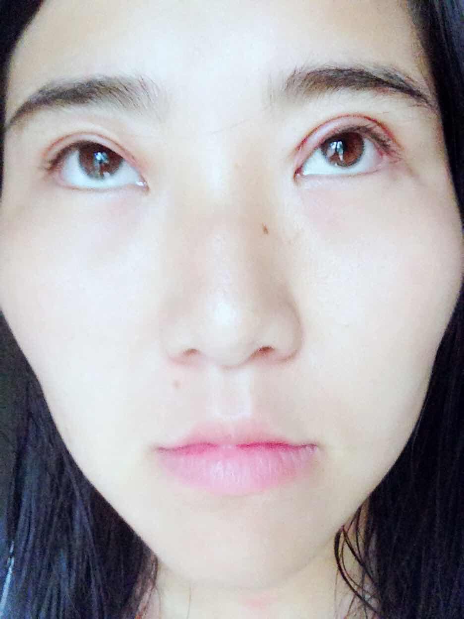 割双眼皮后如何才能快速消肿?