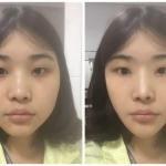 下颌角整形后照片