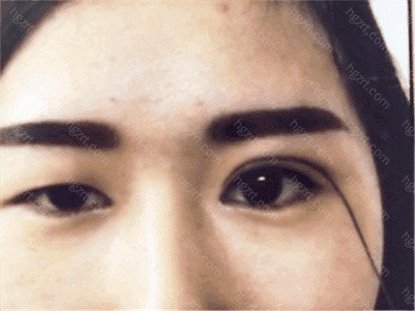 怎样才能做出好看的双眼皮