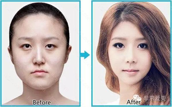 韩式双眼皮手术采用局麻的方式