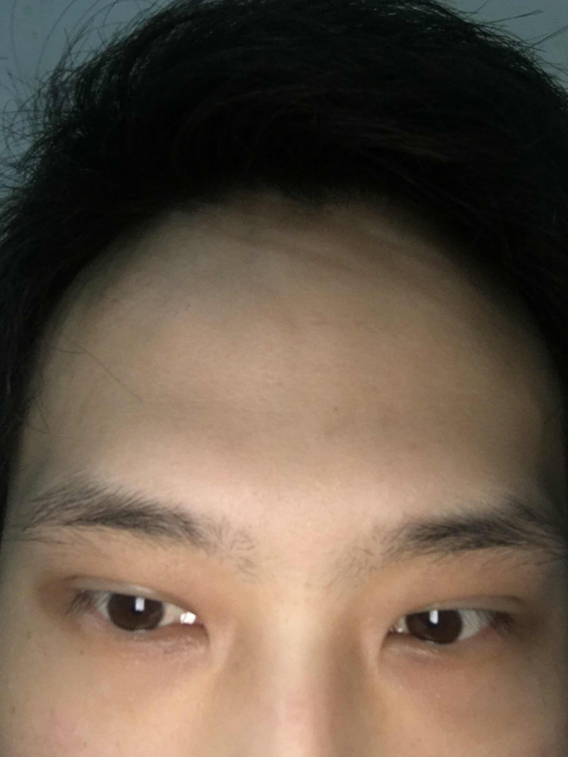 黑眼圈应该怎么去除啊?