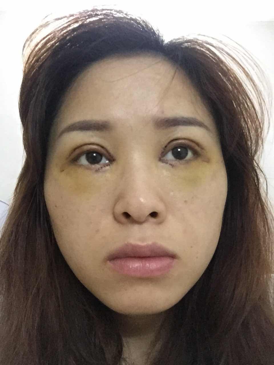双眼皮手术后眼周发黄怎么办,怎么这么黄,是不是淤青转变黄色,然后就好了,还没拆线!已经五天了,是不是恢复的不好啊