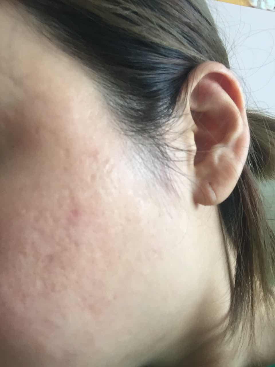 韩国皮肤管理怎么样的,多年痘坑痘疤 做过激光 微针 改善都不大 敏感肌 求推荐韩国专业皮肤医院 做广告的不要进 真心有实力的皮肤医院来