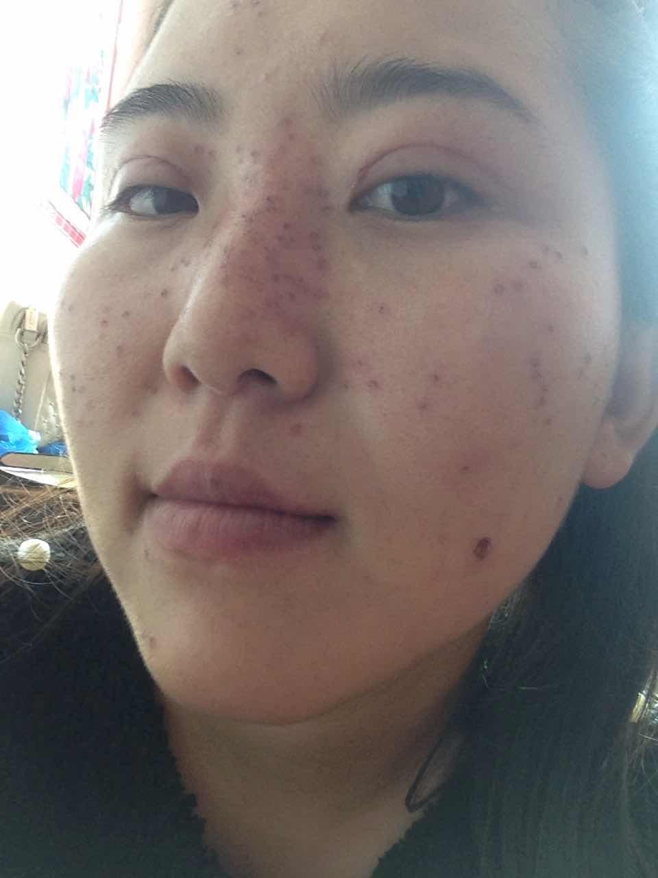 点痦子会留疤吗,刚做的 会不会留疤啊 皮肤都破了