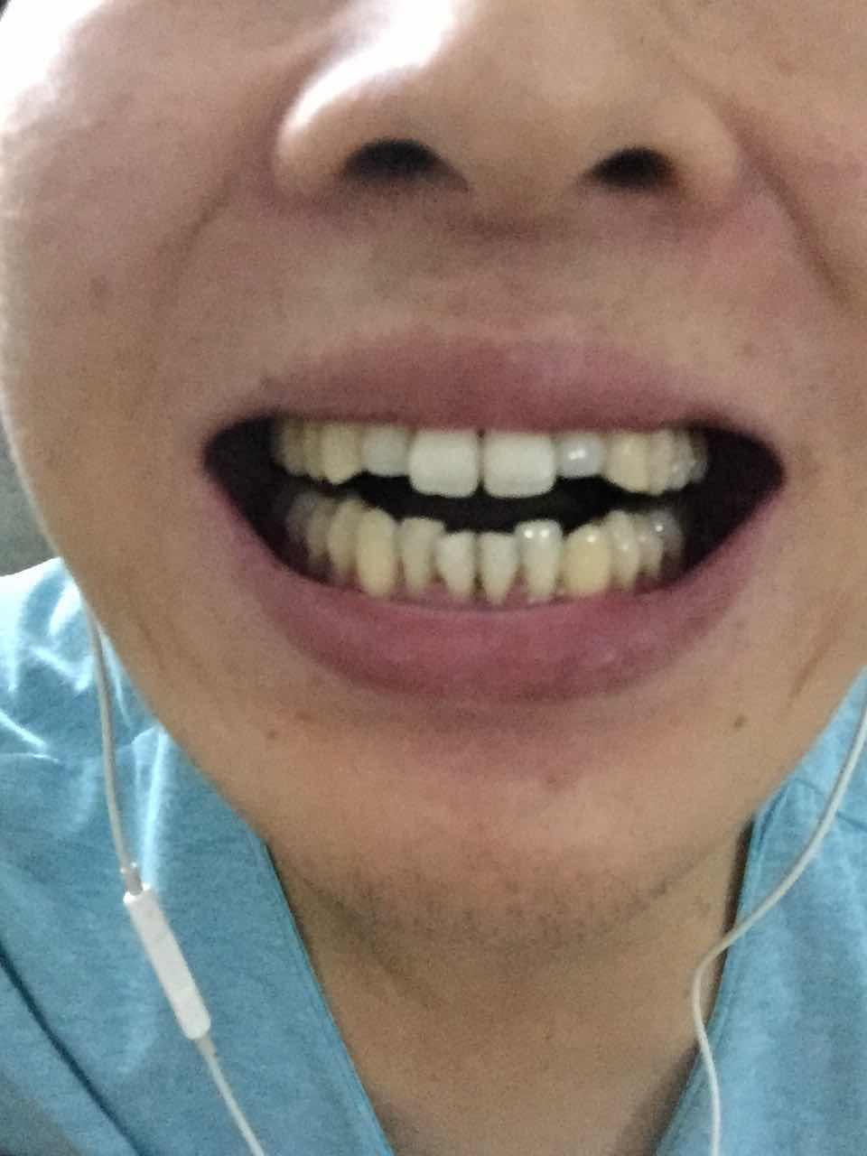 牙齿短怎么办,请问上排牙两颗短的做美容冠行吗  能有多长寿命  对口腔的其他牙齿有没有伤害  美容冠一般做一颗牙什么价位
