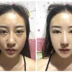 鼻头肥大缩小前后对比照片来了,模拟效果怎样…