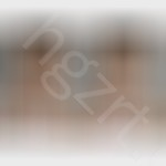 注射丰额头前后对比图,额头不饱满的话,脸型会受很大影响。