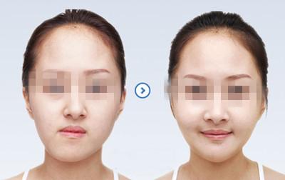 如何矫正面部不对称