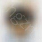 这个脱发能看好吗?听说可以种植头发,植发有危险吗?