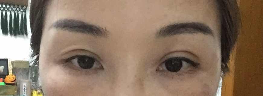 埋线双眼皮术后注意事项,埋线双眼皮15天,这是不是失败了?
