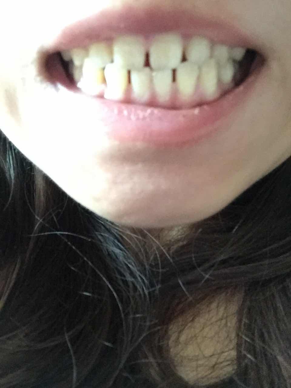 牙齿缝隙大如何矫正,有哪几种办法