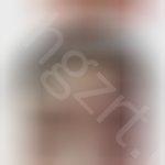 双眼皮半个月还是肿胀,全切双眼皮做了20天还是不消肿,俩只眼睛看着还不一样宽。是不是做失败了