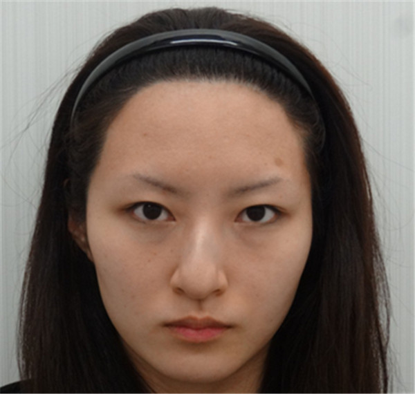 日本水の森美容外科鼻尖缩小效果好么?