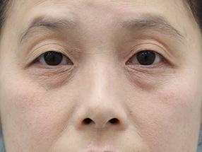 日本銀座通美容外科東京本院自体脂肪填充泪沟能够维持多久?