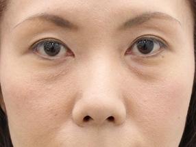 日本銀座通美容外科脂肪舔泪沟以后会留下疤痕吗?