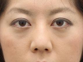 日本銀座通美容外科去眼袋手术会影响视力吗?