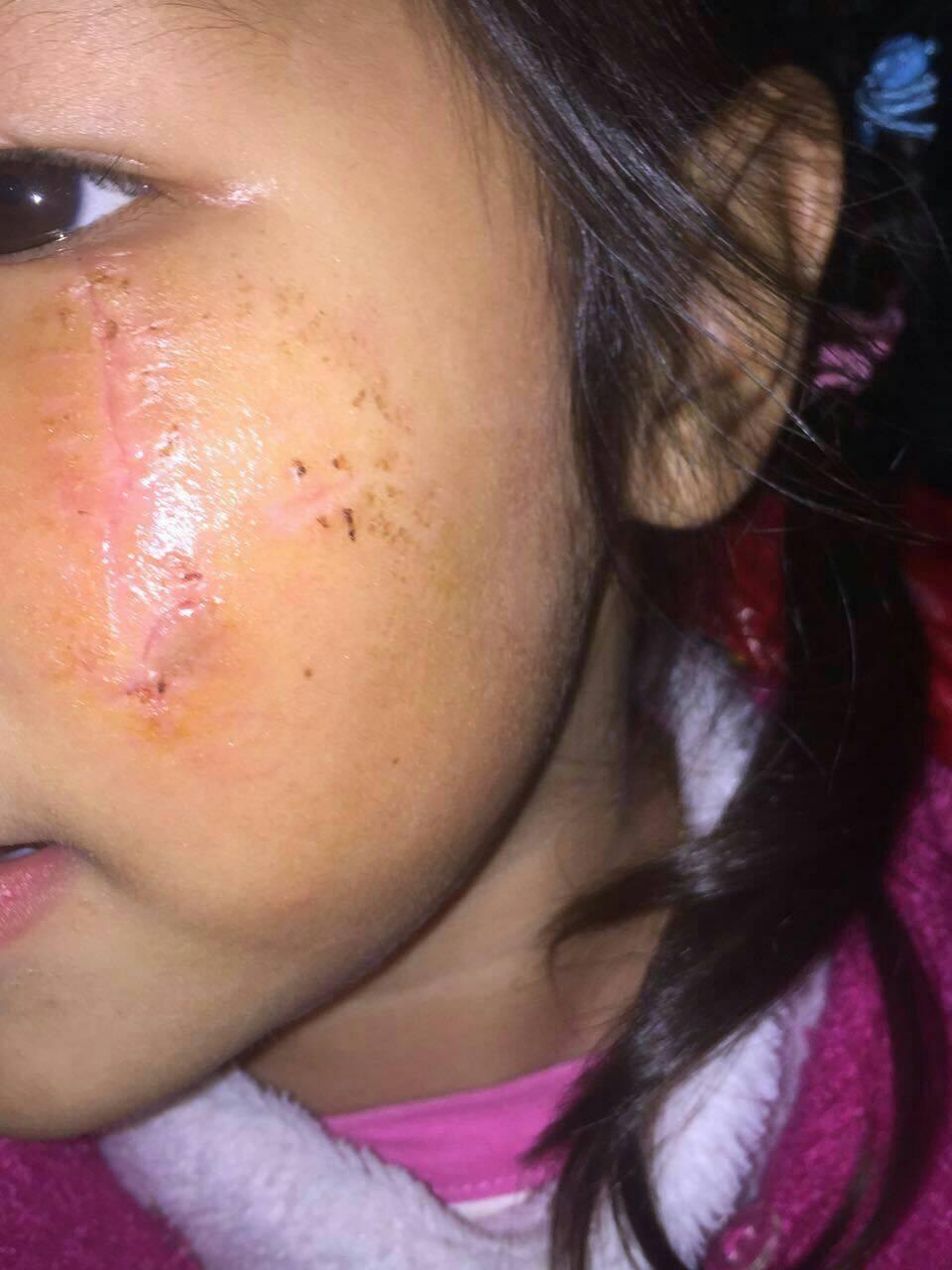 划破伤口怎么处理,十月十九号手拿玻璃茶杯跌跟头,把左眼下眼皮下面划破,现在针线拆了。请问现在伤口怎么处理就不会留下疤痕?