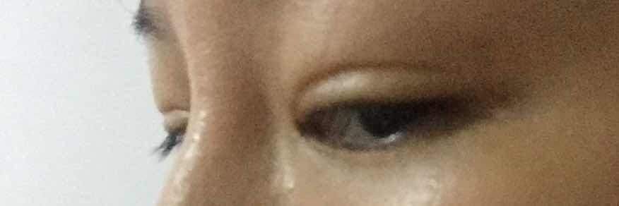 切割双眼皮还原单眼皮可以吗,双眼皮全切手术失败,双眼皮窄且凹陷,能还原单眼皮吗??