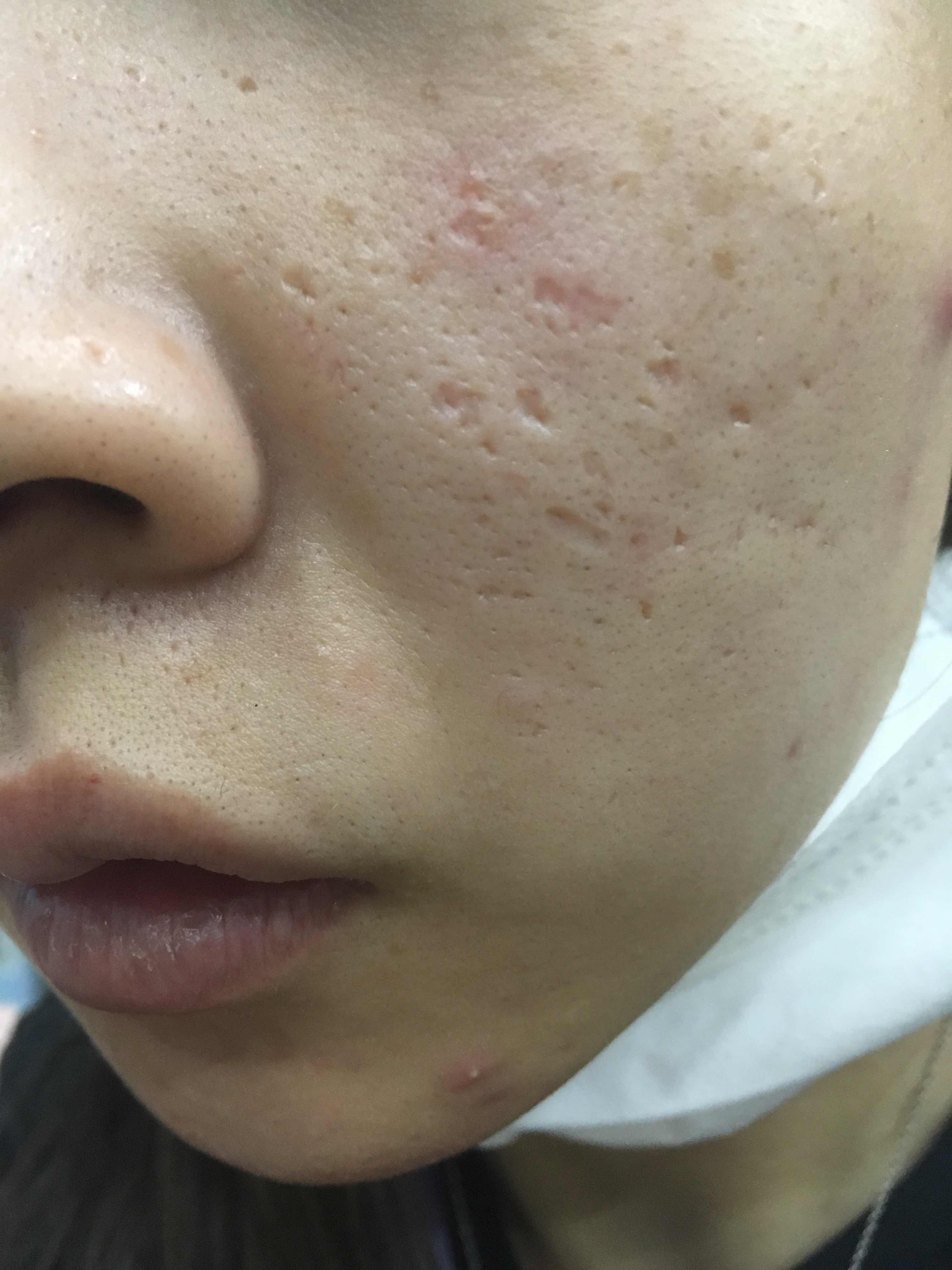 脸上的痘坑能修复吗,應怎樣治療?