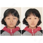 v型脸手术效果图,这位女士脸型主要是下颌角肥大,下巴需要改善
