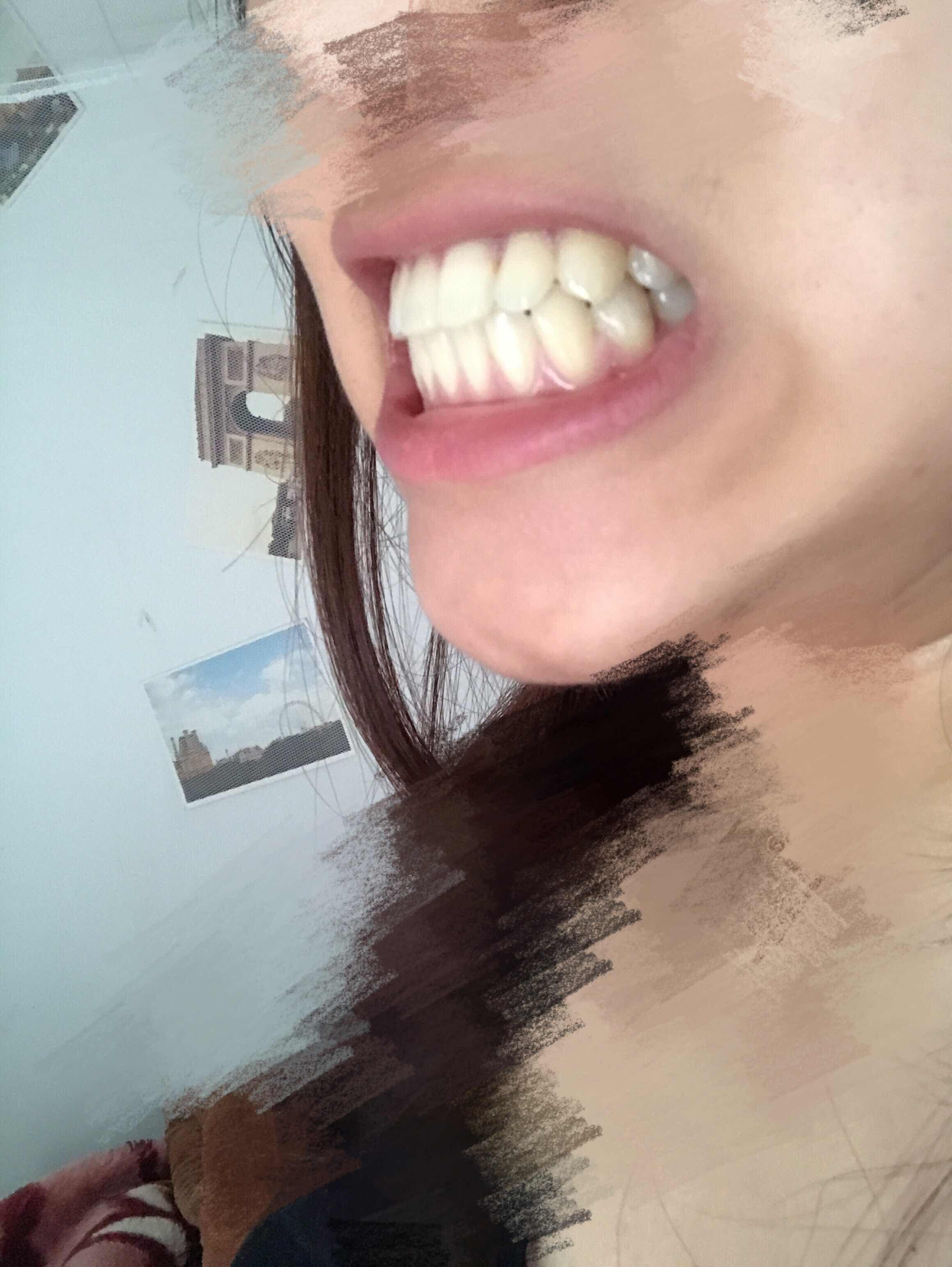 侧面龅牙怎么办,正面还好,笑起来很难看