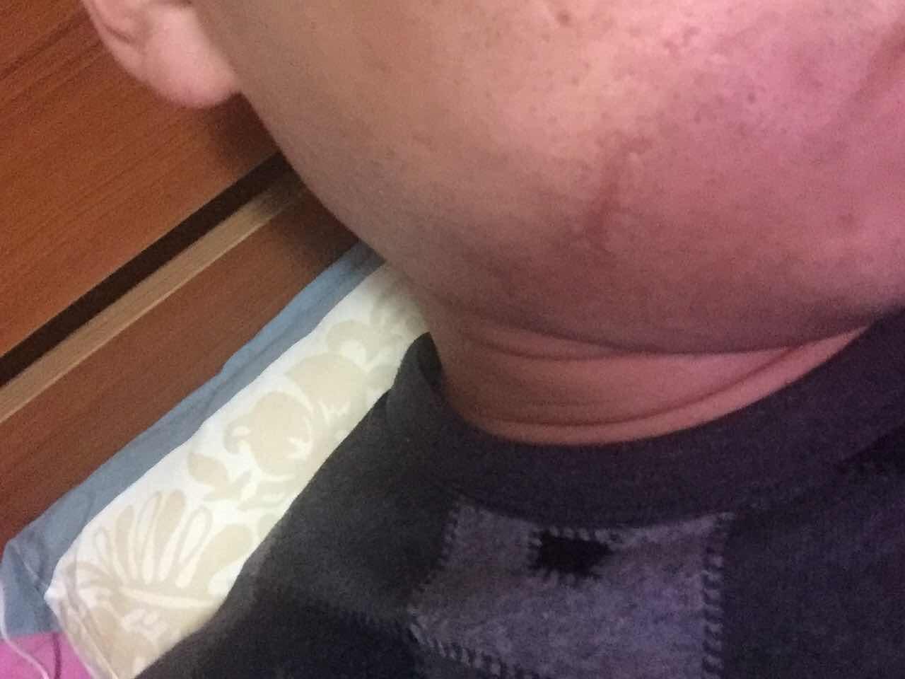 缝针疤痕怎么去除,小时候的缝针过的疤痕,怎么治疗?