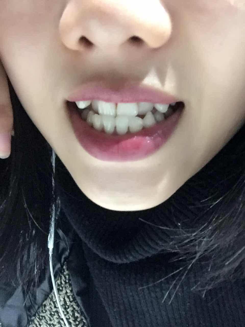 地包天如何矫正,地包天加两个虎牙怎么办?隐形带牙套的话大概需要多少钱?