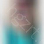 唇系带过低能自愈吗,我这属于唇系带附着过低吗?