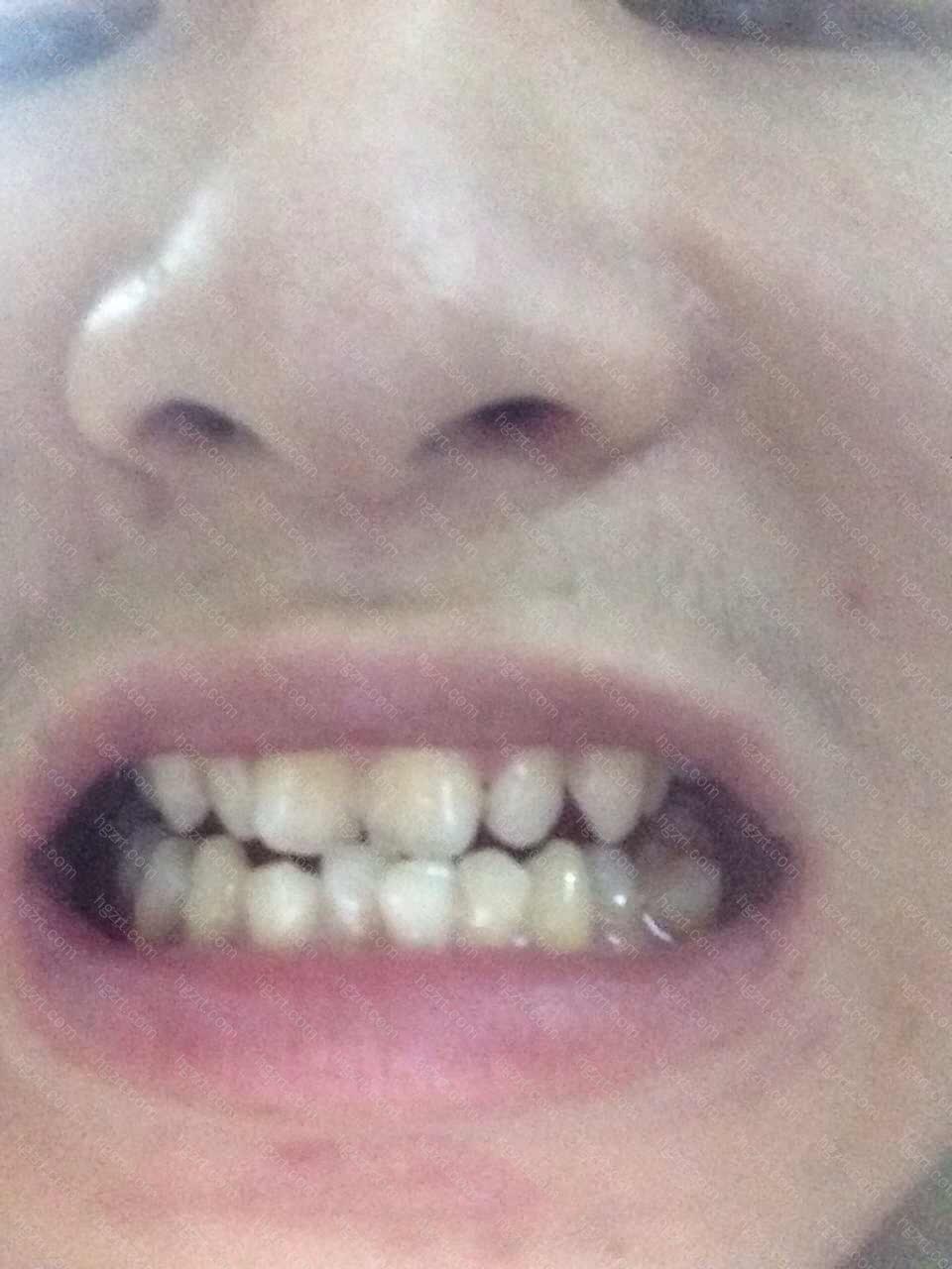 其实您只需要对牙齿就行美容修复