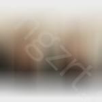 鼻头缩小术后恢复时间长吗?鼻头缩小术手术效果图